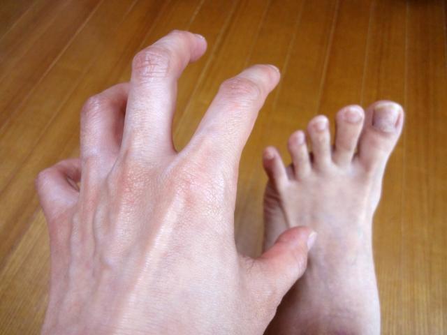 かゆい足を掻く